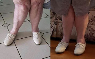 remote healing before and after